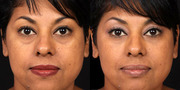 Cosmetic Surgery Wisconsin Helps You to Get Your Desired Looks