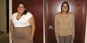 Lose Weight through Abdominoplasty Wisconsin